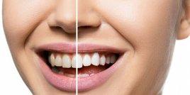 Няколко естествени начина за избелване на зъбите