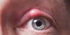 Ечемик на окото, Лечение: 5  средства за домашно лечение