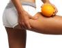 Разбий целулита! 3 лесни стъпки към идеално гладка кожа
