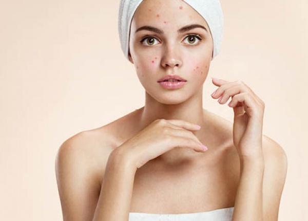 5 грешки в грижата за кожата, които предизвикват акне