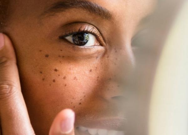 Как витамин D се отразява на кожата и косата ни?