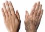 5 съвета, които ще накарат ръцете ви да изглеждат 10 години по-млади